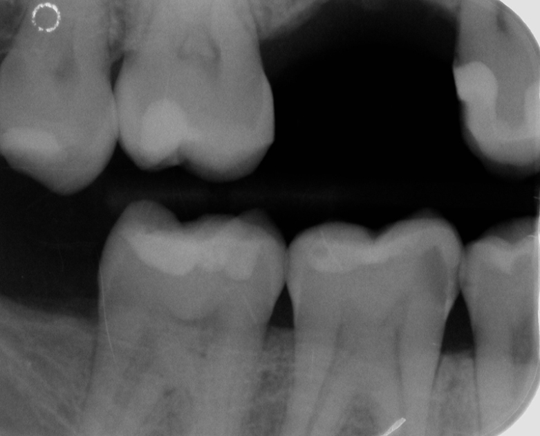 Fig. 6) Bitewing radiograph, showing the presence of carious lesions in the fourth quadrant